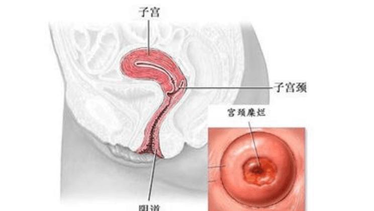 宫颈肥大的原因