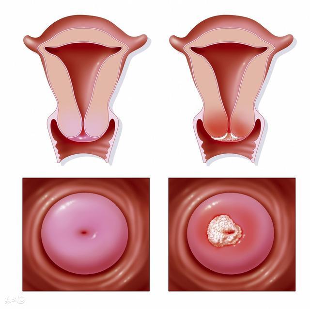 宫颈息肉的病因