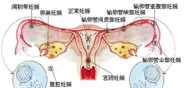 宫外孕症状