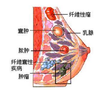 乳腺囊肿的症状