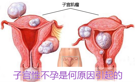 子宫性不孕的预防