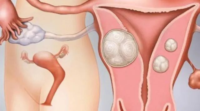 子宫肌瘤的疗法