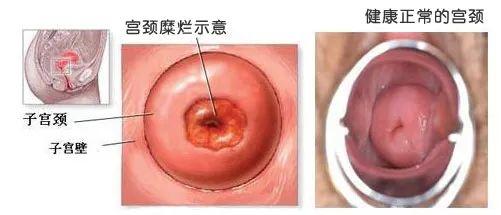 宫颈糜烂出血