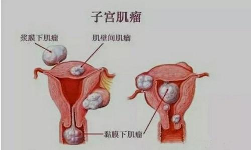 子宫肌瘤的症状