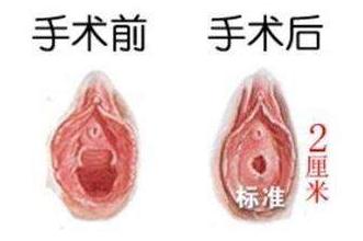 处女膜修复